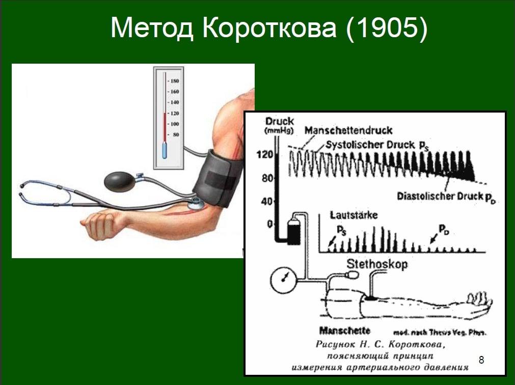 Принцип измерения давления по Короткову