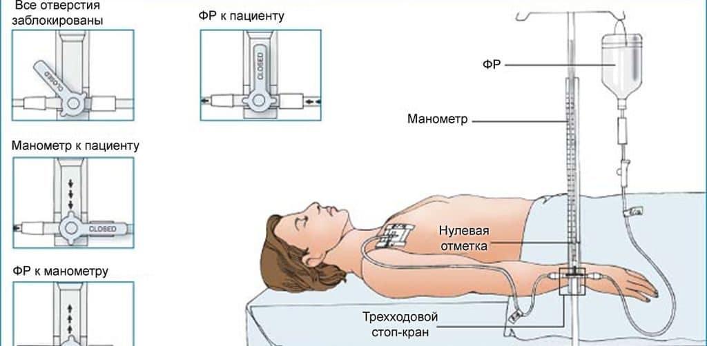Измерение венозного давления