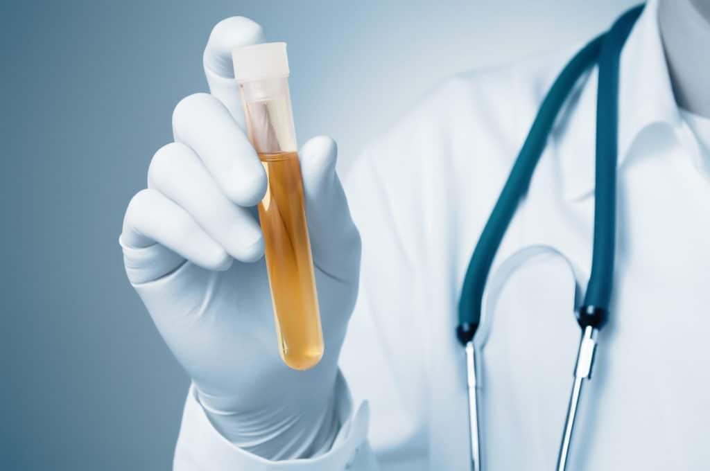 Прием мочегонных препаратов при гипертонии