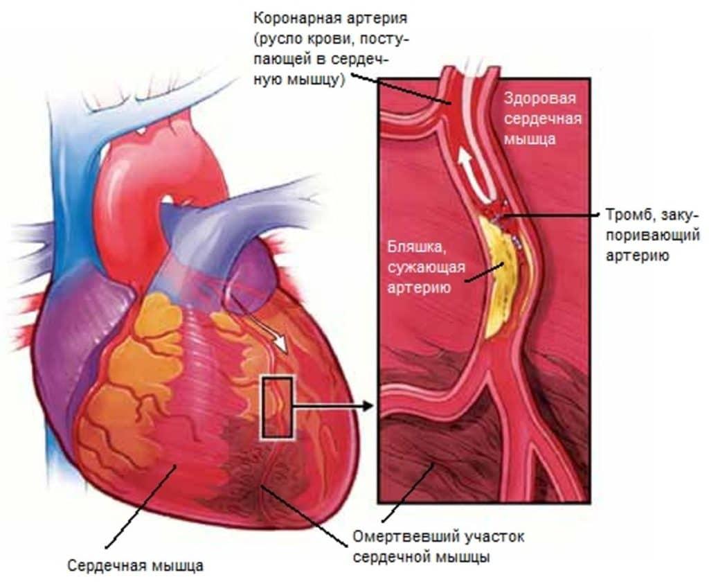Инфаркт миокадра