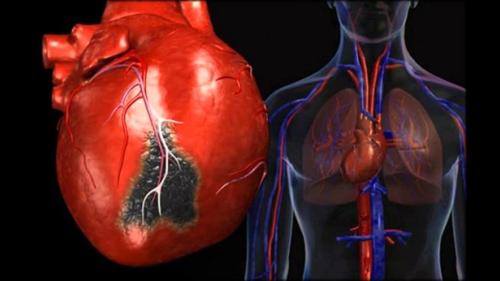 Давление при инфаркте, симптомы и первая помощь во время приступа