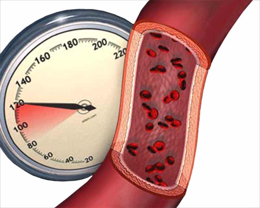 Гипертония и гипертензия – в чем разница и отличия?