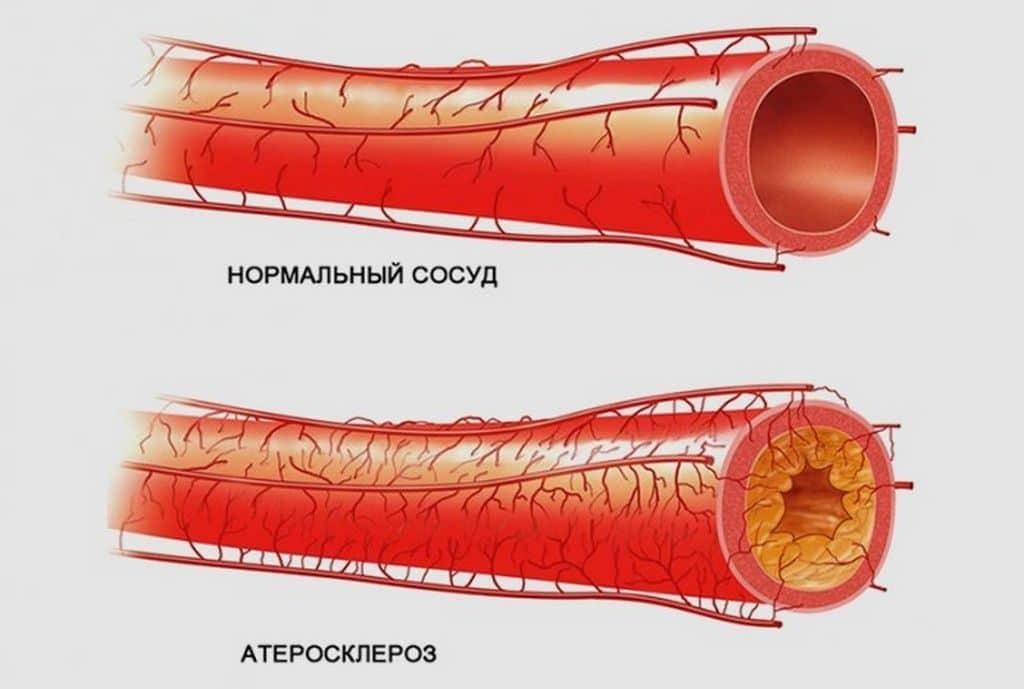 Атеросклероз сосудов у мужчин