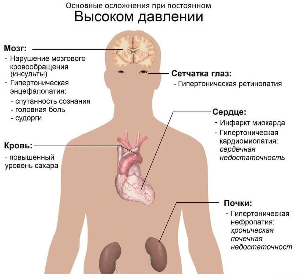 Осложнения при гипертонии