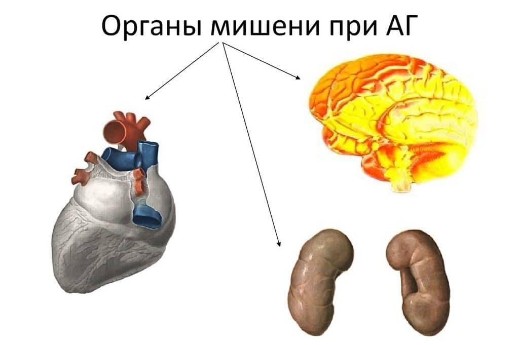 Изображение - Гипертония и гипертензия в чем разница slide-35-1024x681