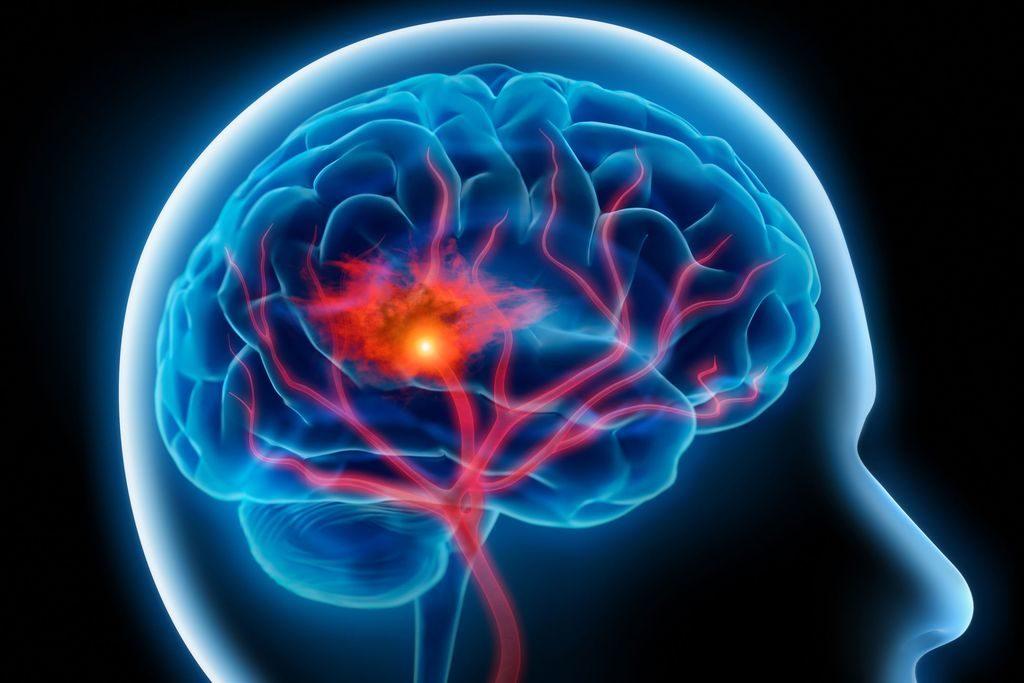 Инсульт при злокачественной артериальной гипертензии