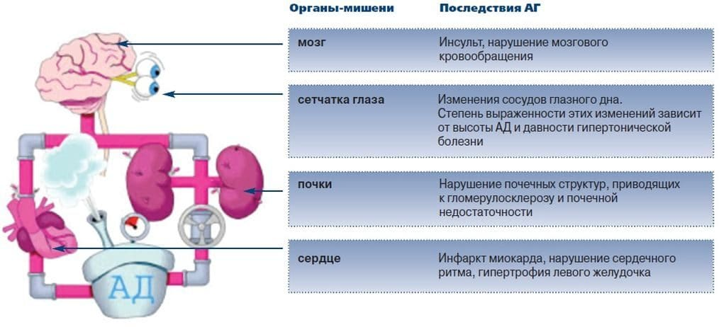 Органы-мишени при гипертонии 2 степени