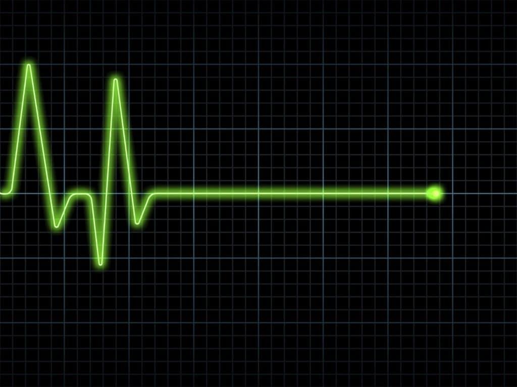Остановка сердца при гипертензивной болезни сердца
