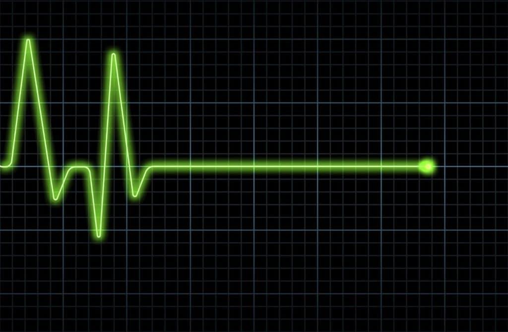 Остановка сердца при передозировке Беталок ЗОК