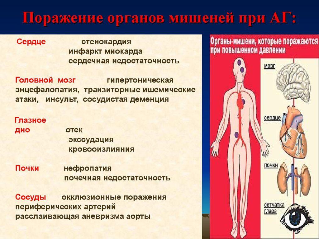 Органы-мишени при гипертонии 3 стадии