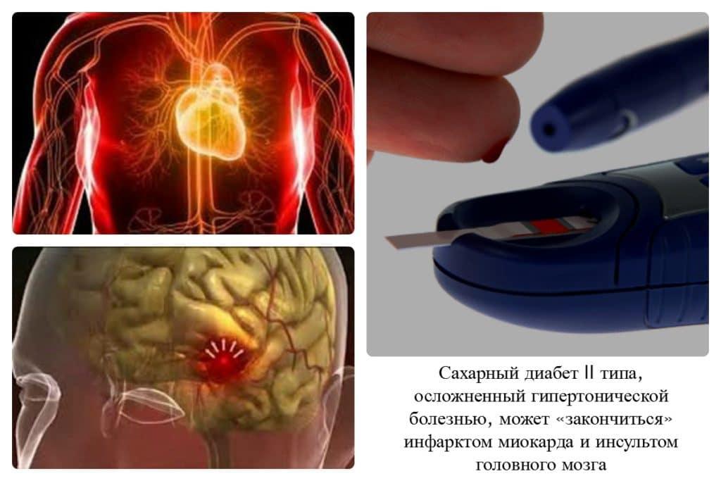 Осложнения гипертонии при сахарном диабете