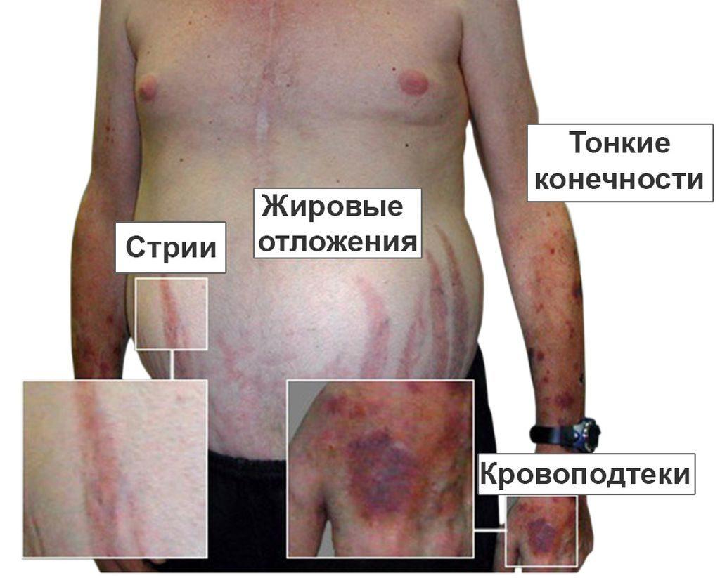 Эндокринная гипертензия при синдроме Кушинга
