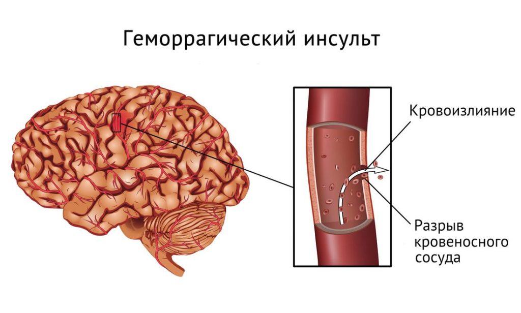 Инсульт при гипертонической энцефалопатии