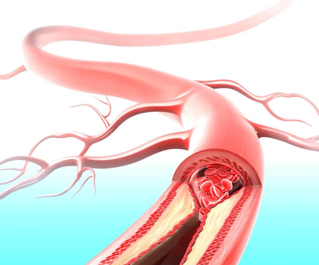Атеросклероз и гипертония: как связаны два заболевания и как их лечить