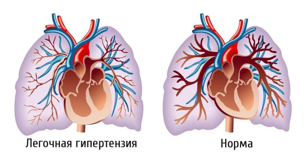Увеличение правого желудочка при легочной гипертензии