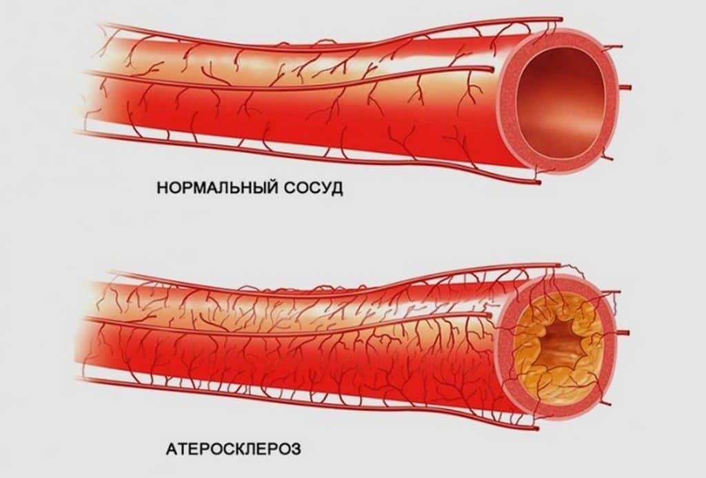 Атеросклероз сосудов и гипертензия