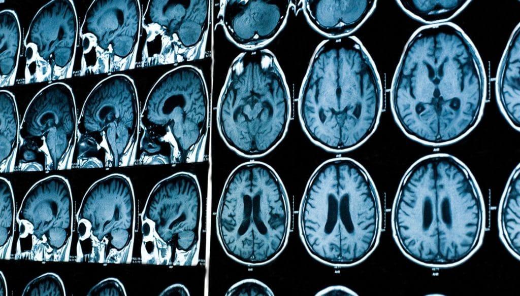 МРТ при гипертонической энцефалопатии