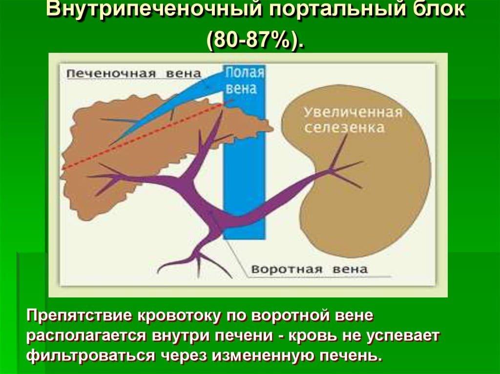 Внутрипеченочная портальная гипертензия