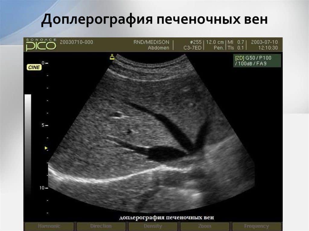 Допплерография при портальной гипертензии