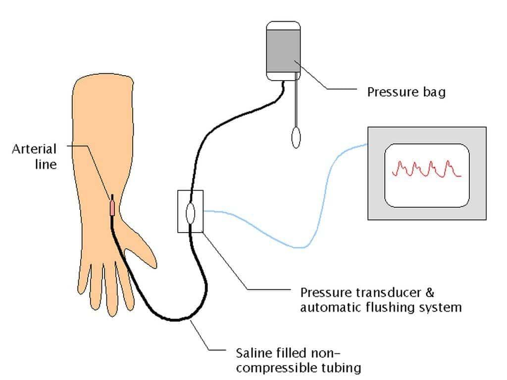 Схема инвазивного измерения давления