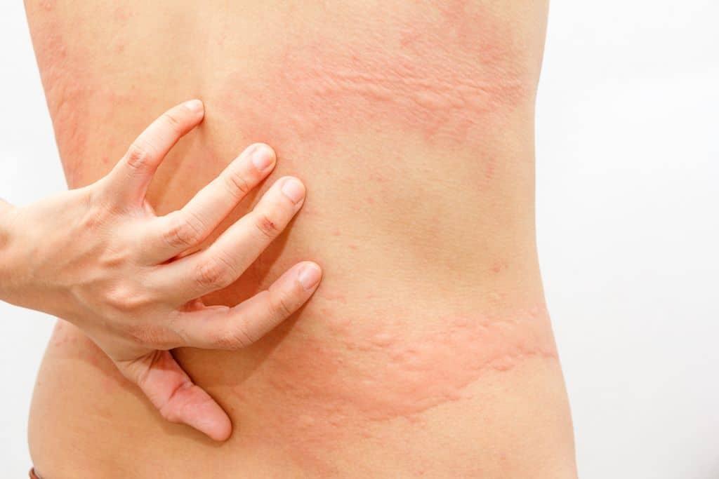 Аллергия от лекарства Соталол