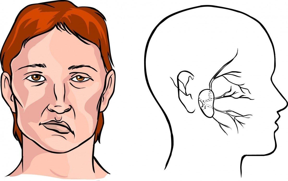 Особые указания по применению препарата Олмесартан