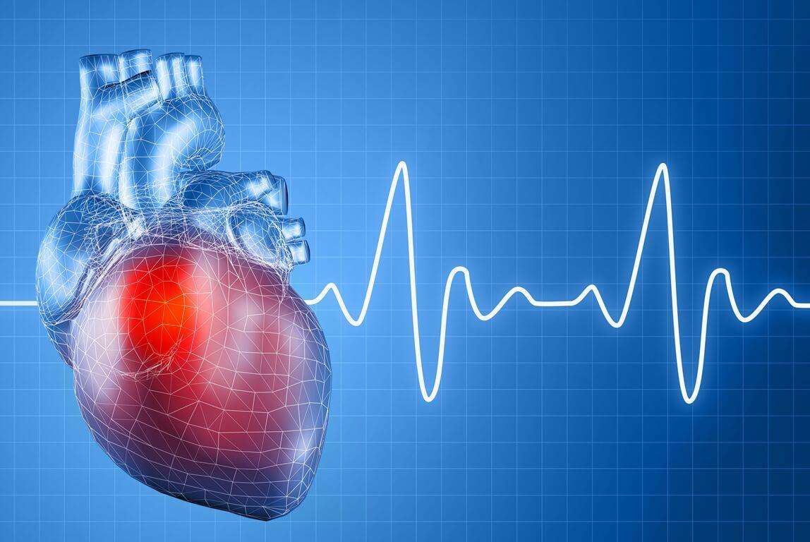 В чем суть абляции сердца