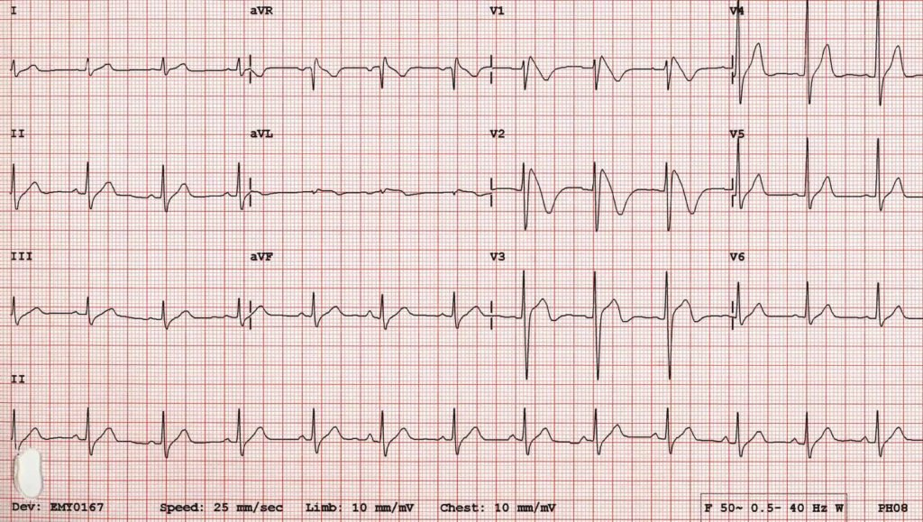 Электрокардиограмма при мерцательной аритмии