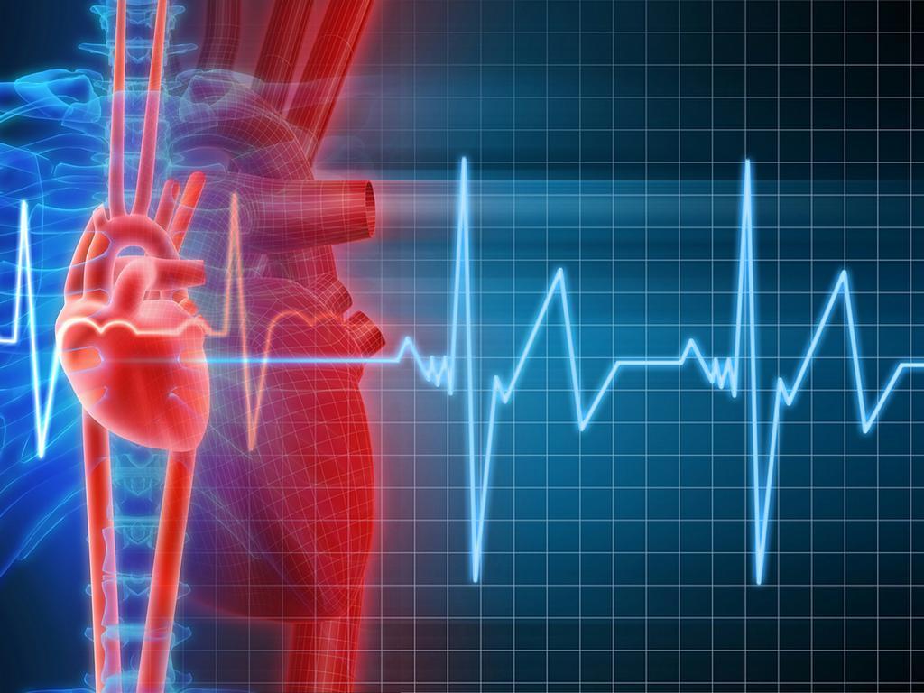 Пароксизмальная форма фибрилляции предсердий: причины, лечение