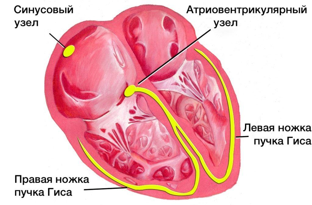 Желудочковая аритмия сердца