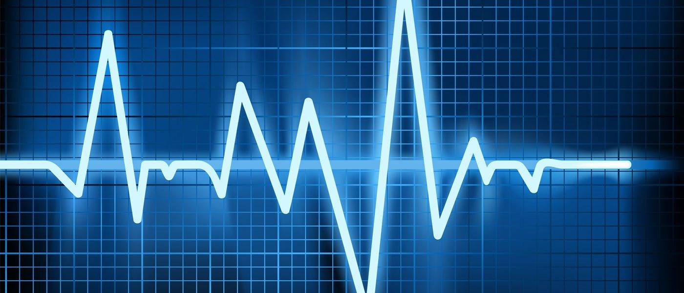 Прогноз жизни при мерцательной аритмии сердца
