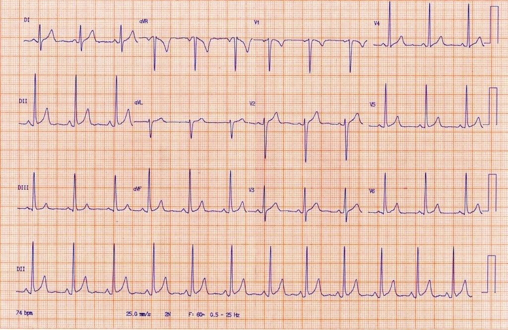 ЭКГ при синусовой аритмии