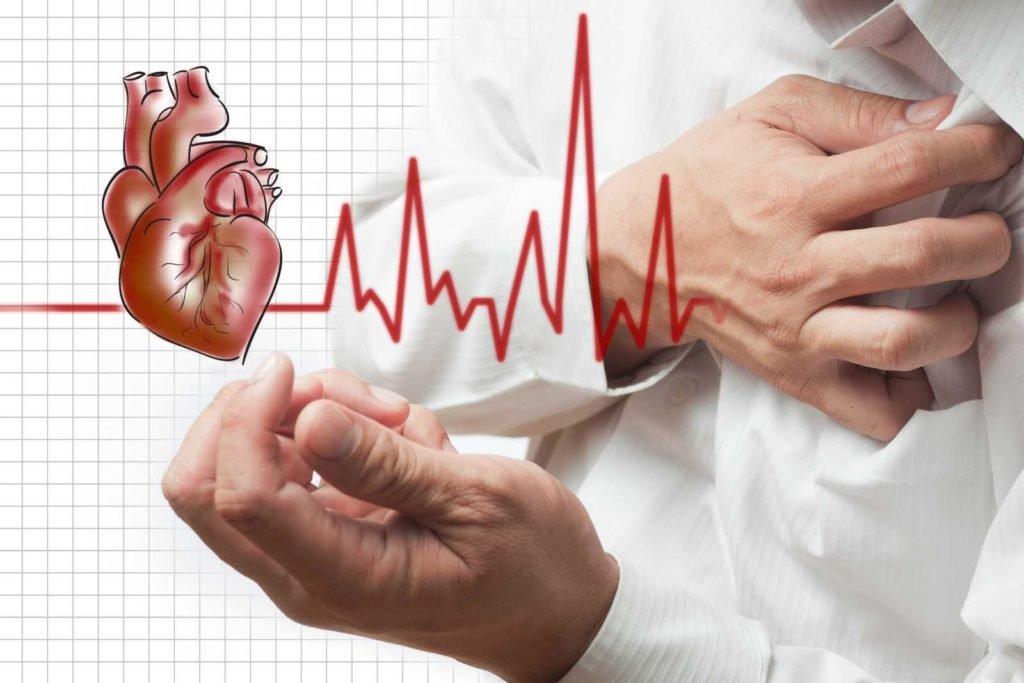 Прогноз длительности жизни при мерцательной аритмии