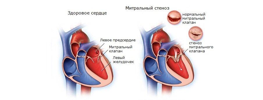 Митральный стеноз сердца
