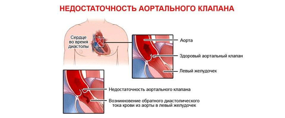 Аортальная недостаточность сердца
