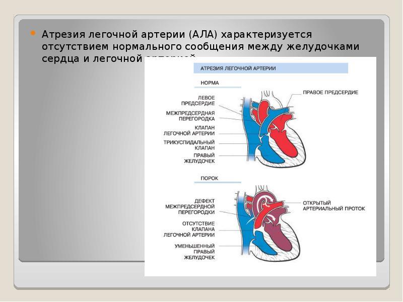 Атрезия легочной артерии