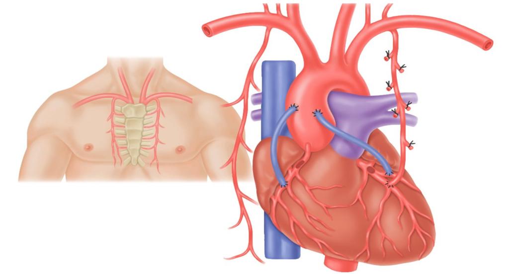 Митральный порок сердца: причины патологии и методы лечения