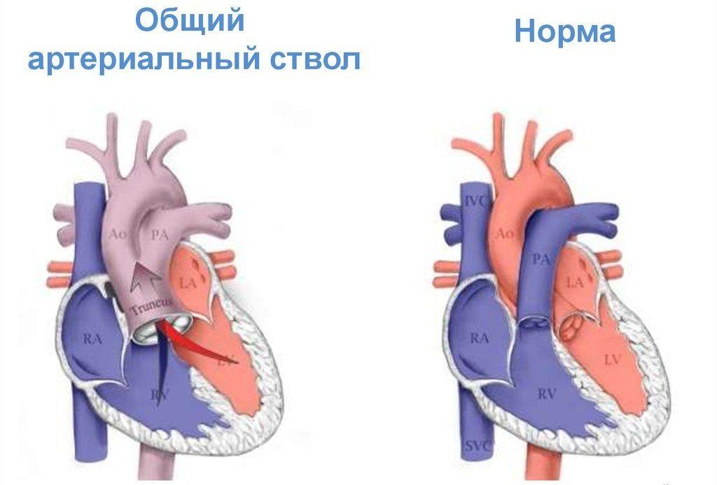 Общий артериальной ствол у ребенка