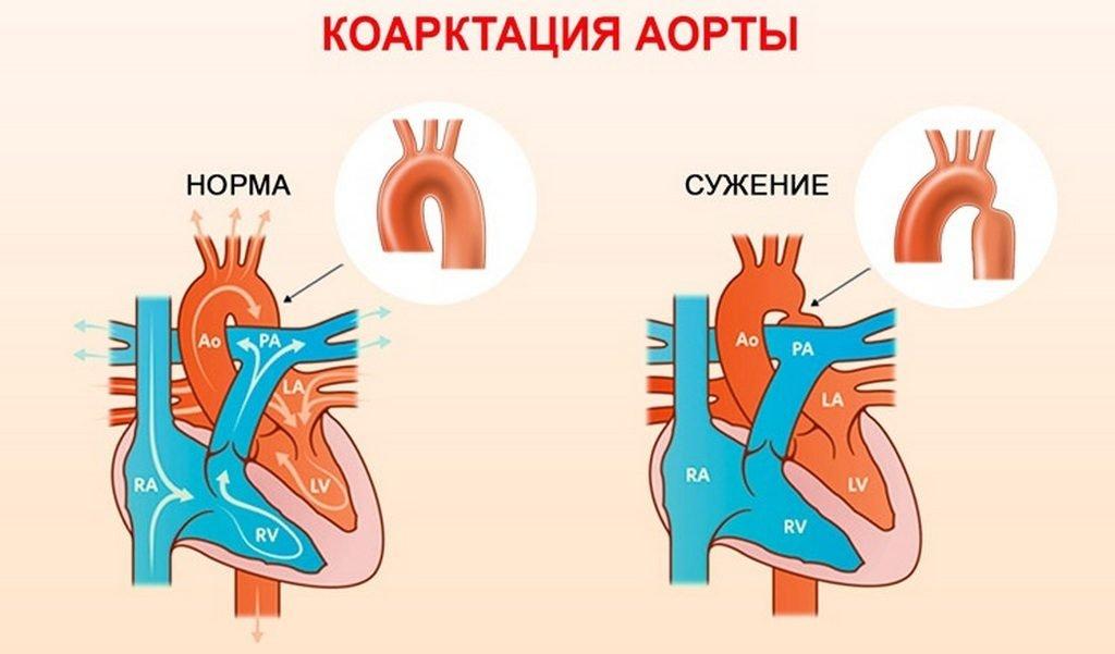 Коарктация аорты у детей