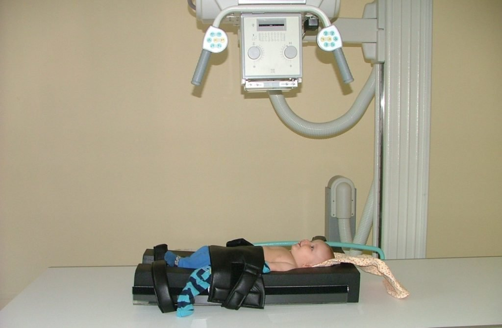 Диагностика общего артериального ствола у детей