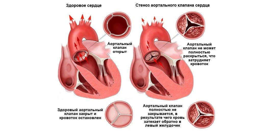 Виды аортального порока сердца
