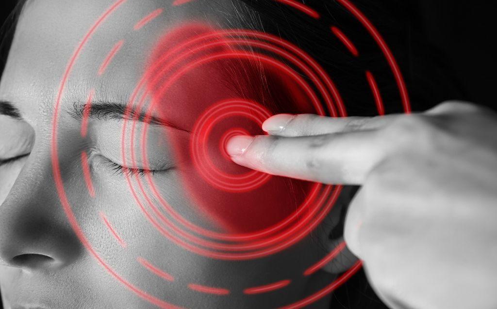 Мигрени при ВСД